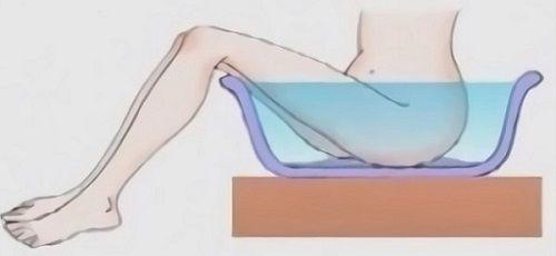Марганцовка при цистите: лечение, противопоказания