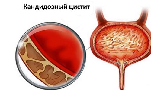 Особенности течения патологии во многом зависят от половой принадлежности пациента, его иммунного статуса и индивидуальных характеристик строения мочевого пузыря
